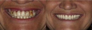 Total Dentures