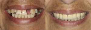 Upper Crowns and Fix Denture on Botton